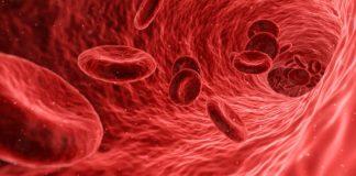 zaburzenia krzepliwości krwi