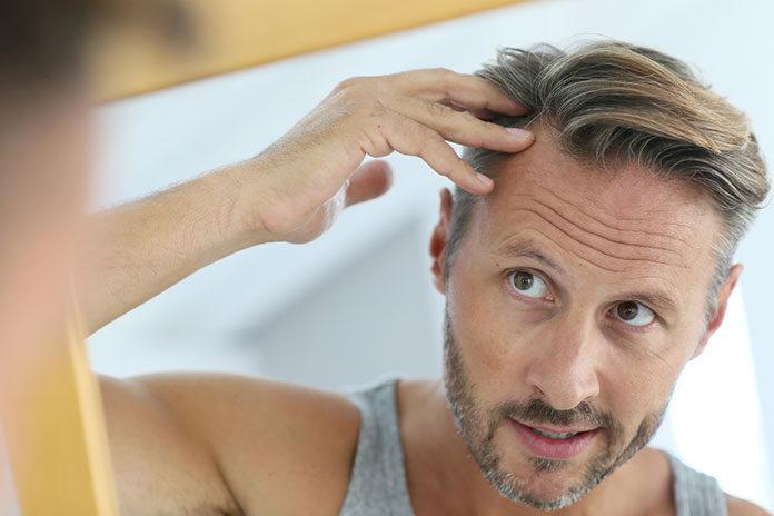 Jak radzić sobie z wypadaniem włosów?
